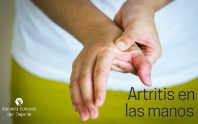 Tratamiento para artritis en las manos
