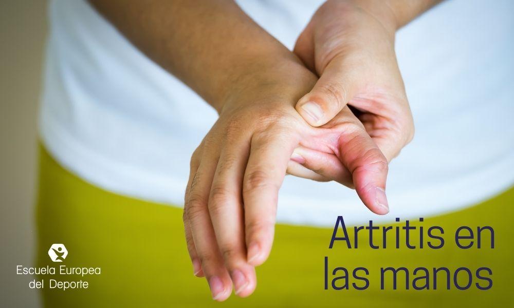 Aprende del artritis en las manos y su tratamiento